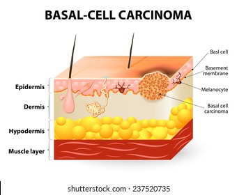 skin cancer. Basal-cell carcinoma or basal cell cancer (BCC). Schematic representation of skin. Melanocytes are also present and serve as the source cell for melanoma.