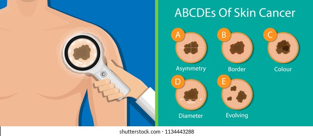 Skin cancer diagnosis dermatology screening examination UVB prevent squamous treat basal Examine test
