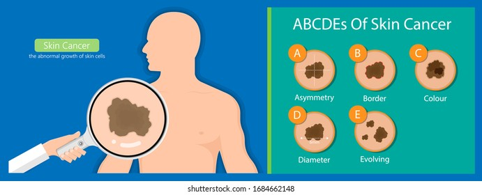 Skin cancer diagnosis dermatology screening examination UVB prevent squamous treat basal test ABCDEs rule sun