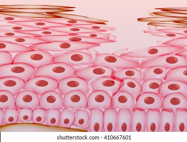 Skin Cell Damage, Layers - Vector Illustration