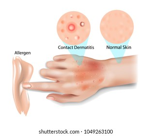 Skin Contact Dermatitis, Allergic contact dermatitis, Irritant contact dermatitis,  Phototoxic dermatitis