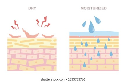 Skin cross section of dry, and moisturized.  Pale colored illustration in flat cartoon style.