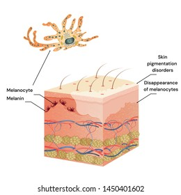 Skin cut medicine problem skin vitiligo. Medical Illustration. Localization and symptoms of Vitiligo.