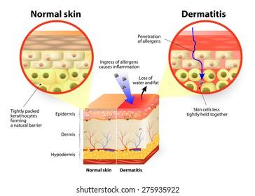 Skin disease. dermatitis or eczema. labeled diagram