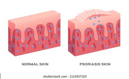 skin disease vector / psoriasis