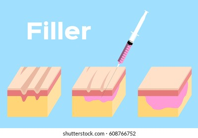 skin filler and botox vector . It can cure the wrinkle