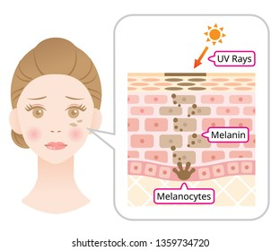 skin mechanism of melanin and facial dark spots. Infographic illustration of woman face and skin layer. Beauty skin care concept