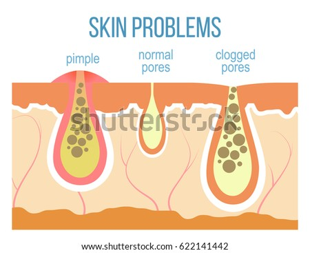Skin Problems Acne Pimples Clogged Pores Stock Vector Royalty Free