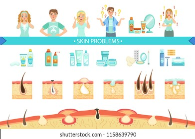 Skin Problems Infographic Medical Poster. Cartoon Style Healthcare Acne Issue Info Illustration.