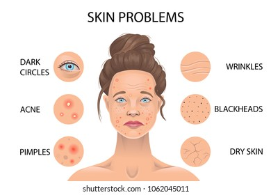 Types of Skin Infections Images, Stock Photos & Vectors