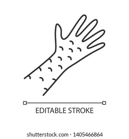 Skin rash, contact dermatitis linear icon. Irritation thin line illustration. Rubeola, measles symptom.   Hives, eczema, psoriasis contour symbol. Vector isolated outline drawing. Editable stroke