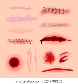 Skin scars, cuts and bloody wounds set. Marks left on skin or within body tissue, burn, or sore place. Vector flat style cartoon illustration