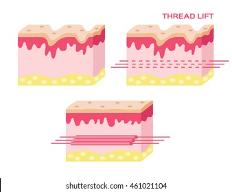 skin vector with step of thread lift , vector