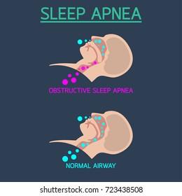 Sleep Apnea vector icon illustration