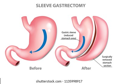 SLEEVE GASTRECTOMY. WEIGHT LOSS SURGERY - before and after