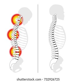 Slipped disc prolapses, curved back, severe back pain - profile views of spinal disc herniation versus upright healthy back - isolated vector illustration on white background.