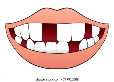 Smiling cartoon mouth with several missing teeth