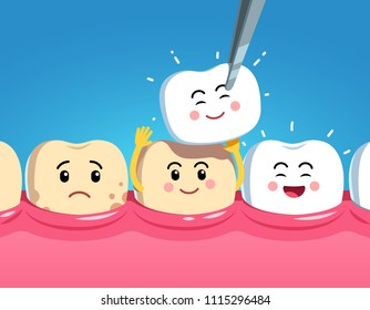 Smiling and upset animated cartoon teeth characters on gum and veneer. Funny teeth dental restoration characters. Putting new veneer on discolored tooth. Flat style vector illustration on blue backgro