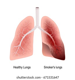 Smoker's lung and healthy lung. before and after a lifetime of smoking