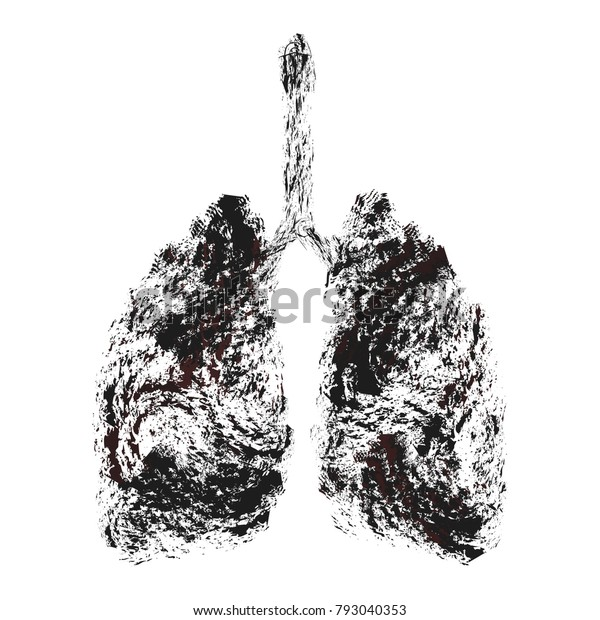Smokers lung, realistic image. Autopsy medical concept. Cancer and smoking problem. Smoker's lung. Element monograph for scientific work, teaching. Vector illustration.