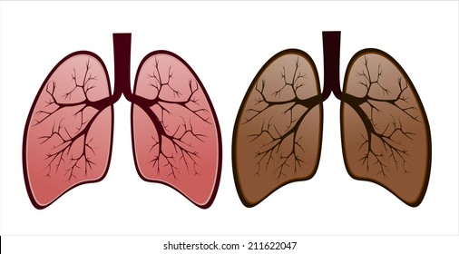 Smoker's lung versus healthy lung