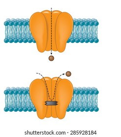 Sodium channel blocked due to anaesthetic drug action
