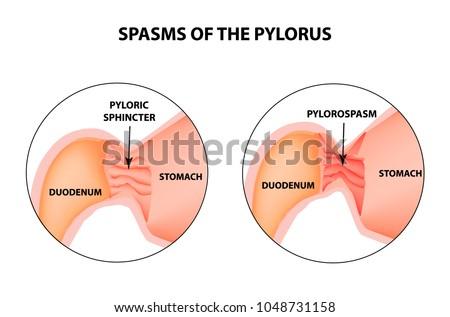 Spasms Pylorus Pylorospasm Spastic Atonic Pyloric Stock Vector ...