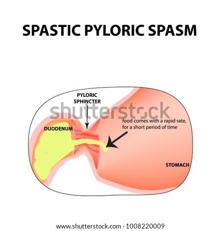 Spasms Pylorus Pylorospasm Spastic Pyloric Sphincter Stock Vector ...