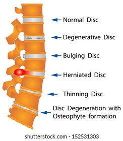 Spine conditions. Degenerative Disc. Bulging Disc. Herniated Disc. Thinning Disc. Disc Degeneration with Osteophyte formation