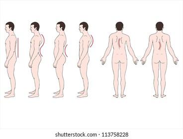 spine deformation
