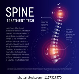 Spine injury treatment, xray human back, healthcare infographic, spinal pain vector illustration.