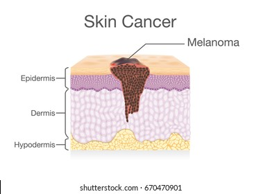 Spreading of Cancer Cell in Human Skin layer. Medical illustration.