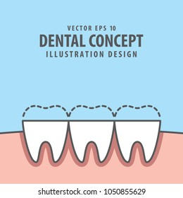 Square banner attrition (Bruxism) teeth illustration vector on blue background. Dental concept.