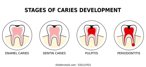 Stage of development of caries, vector illustration (enamel caries,dentin caries,pulpitis,periodontitis)