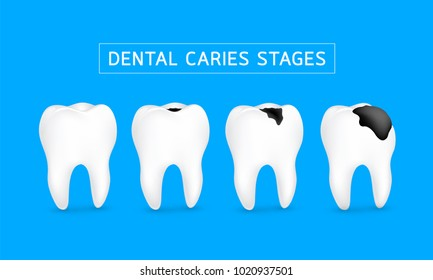 Stages of caries development. Dental care concept, illustration isolated on blue background.
