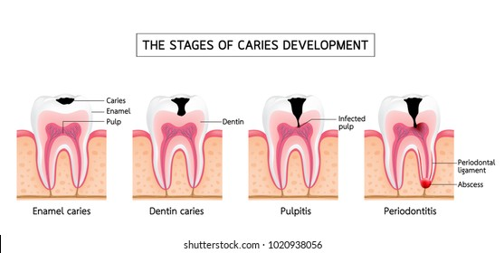 Stages of caries development. Enamel caries, Dentin caries, Pulpitis and Periodontitis. Dental care info-graphic, illustration on white background.
