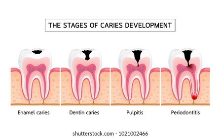 Stages of caries development. Enamel caries, Dentin caries, Pulpitis and Periodontitis. Dental care info-graphic, illustration on white background. - Shutterstock ID 1021002466