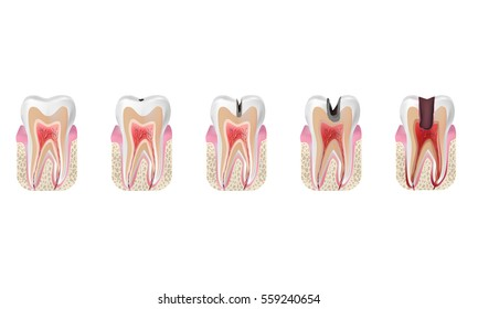 Stages of caries and healthy tooth vector illustration. Superficial, median, deep  caries and  pulpits.