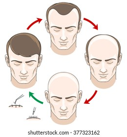 Stages of hair loss men, treatment and transplantation. Vector illustration