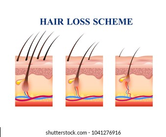 Stages of hair loss on human skin, scheme with anatomy structure including follicles, veins, nerves, vector illustration