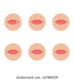 Stages of herpes on the lip. The beginning of The development and cure for herpes virus. Vector illustration in flat style isolated on white background