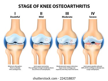 Stages of knee Osteoarthritis (OA)