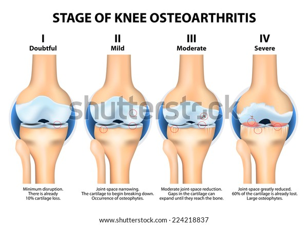 Stages of knee Osteoarthritis (OA)