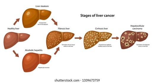 Stages of liver cancer with description corresponding steps: healthy, fatty, fibrosis, alcoholic hepatitis, cirrhosis and cancer liver. Vector illustration in flat style isolated over white background