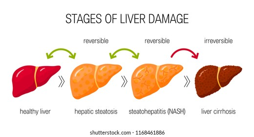 Stages of liver damage concept. Vector illustration of reversible and irreversible liver conditions in flat style