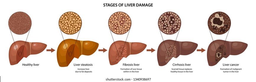 Stages of liver damage with description corresponding steps: healthy, fatty, fibrosis, cirrhosis and cancer liver. Vector illustration with histology in flat style isolated over white background
