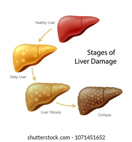 Stages of liver damage. Liver Disease. Healthy, fatty, liver fibrosis and Cirrhosis. Illustration isolated on white background.