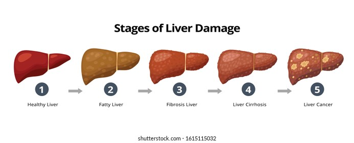 Stages of liver damage from healthy, fatty liver, fibrosis, cirrhosis to liver cancer. Medical infographic, liver diseases icons in flat design isolated on white background.