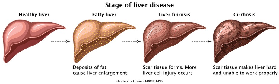Stages Of liver Disease Concept Healthy Liver, Fatty Liver, Fibrosis And Cirrhosis Medical Education Vector Illustration