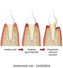 Stages of periodontitis medical vector illustration white background